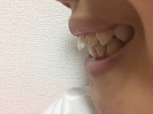 歯並び・矯正